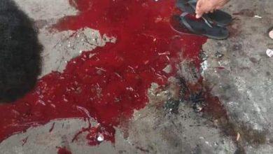 Photo of Granada explode no colo de bandido no Complexo da Penha