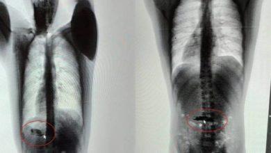 Photo of Dois detentos engolem celular e um deles precisa ser hospitalizado