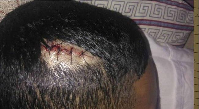 Photo of PM acusado de torturar menor na Rocinha é expulso da corporação